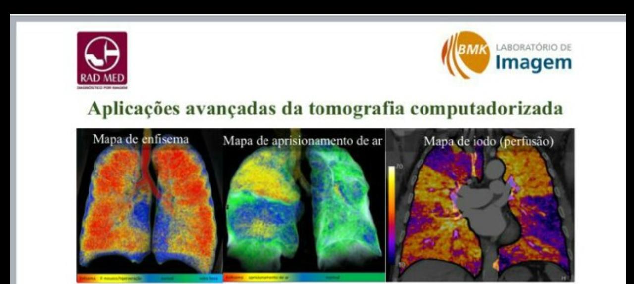 Aplicações Avançadas de Tomografia Computadorizada